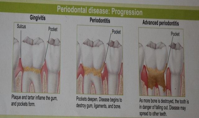 Periodontal disease progression