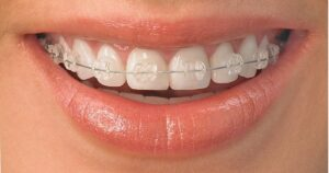 Conventional Ceramic Braces