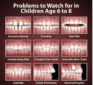 orthodontic-problems-thumb